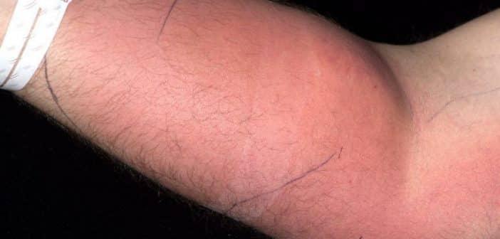 Un homme s'injecte du sperme pour guérir d'un mal qui le rouge