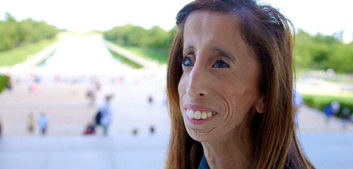 """7 citations de Lizzie Velasquez """"la femme la plus laide du monde"""