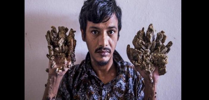 Bangladesh,l'homme Arbre, Demande,amputé ,soulager Sa Douleur