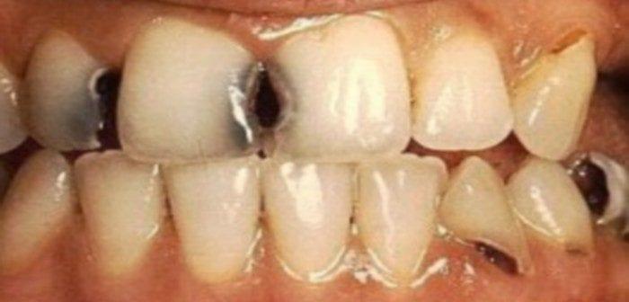 Santé: Une mauvaise hygiène dentaire augmenterait les risques du cancer du foie