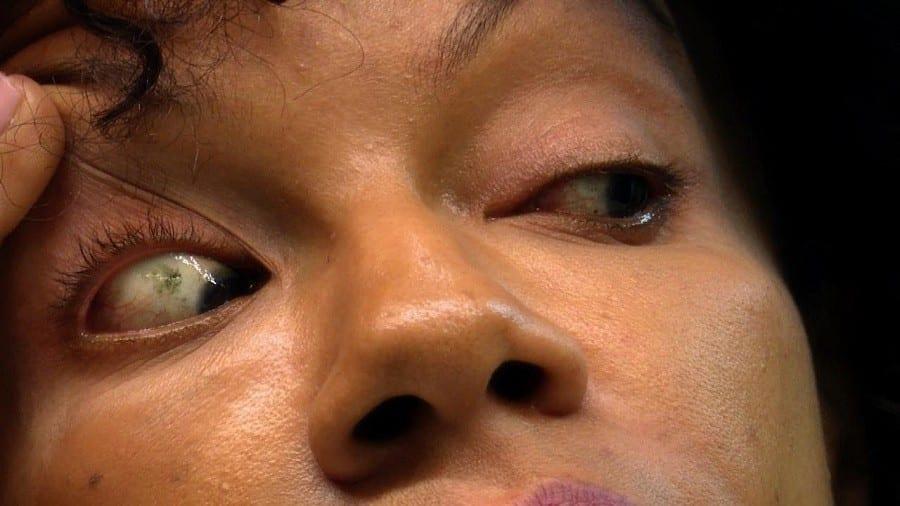 Une jeune femme perd la vue après avoir mis des lentilles de contact