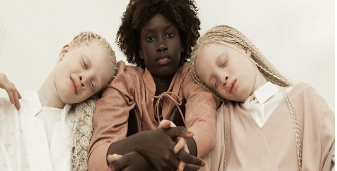 Ces Trois Sœurs , Bouleversent La Toile,photos