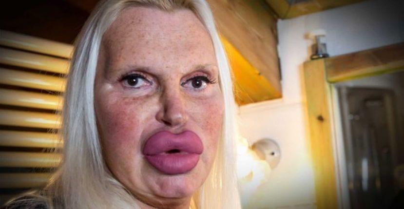 Cet homme a dépensé 46 000 euros en chirurgie pour avoir un visage et un corps parfait de femme (Photos)
