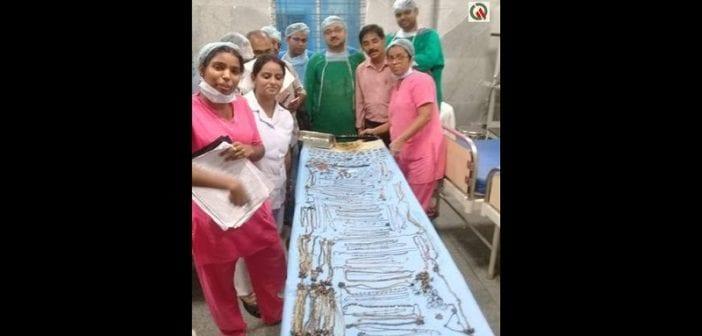 Inde: des médecins retirent 1,6 kg de bijoux de l'estomac d'une femme de 26 ans (vidéo)