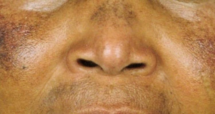 La dépigmentation: la beauté au prix de sa santé