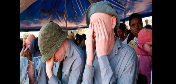 Burundi : Le cadavre d'un albinos découvert sans les membres