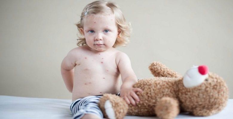 Santé : Ce qu'il ne faut pas faire quand votre enfant est atteint de varicelle