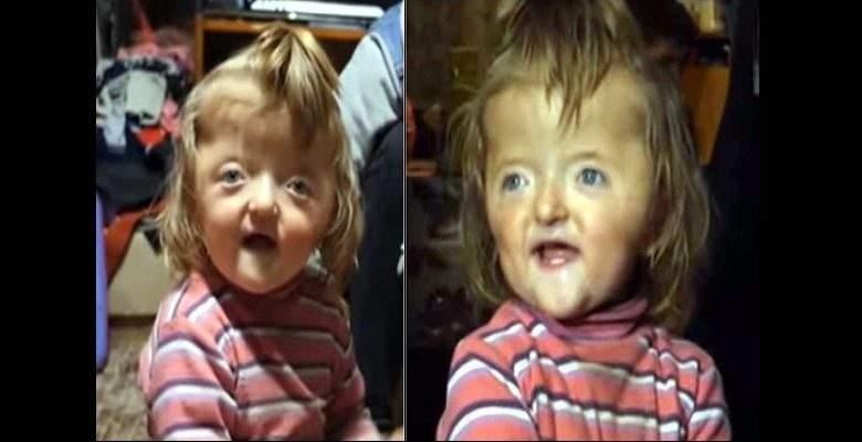 Insolite : une crèche interdit l'accès à une petite fille par peur que son visage effraie d'autres enfants