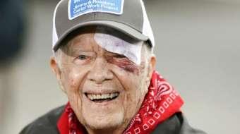 USA : Jimmy Carter chute chez lui et se blesse à l'œil