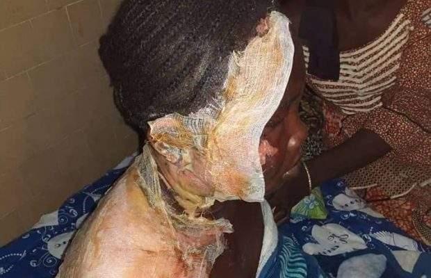 (Photos ) Une femme verse de l'huile chaude sur sa coépouse ( Âmes sensibles s'abstenir )