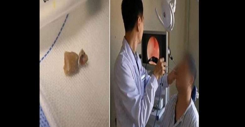 Chine: il découvre une dent qui pousse dans son nez depuis 20 ans