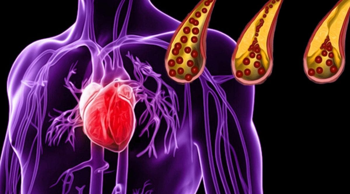 10 aliments qui nettoieront vos artères naturellement et vous protégeront des crises cardiaques