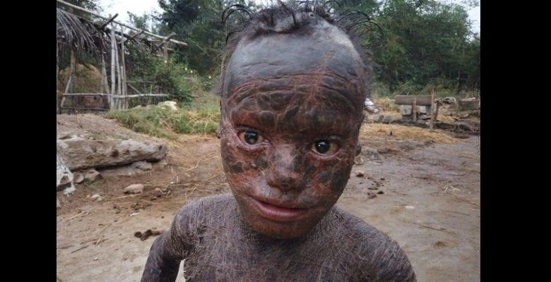 Agé de 10 ans, il souffre d'une maladie qui lui fait perdre la peau comme un reptile (photos)