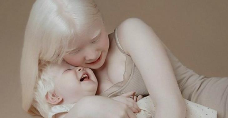 Ces deux soeurs albinos ont 12 ans d'écart et leurs photos font le tour du web
