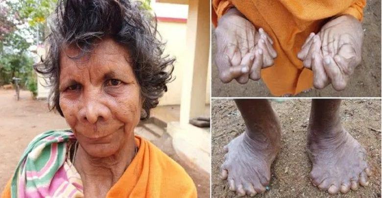 Inde: découverte d'une femme avec 31 doigts et orteils-PHOTOS