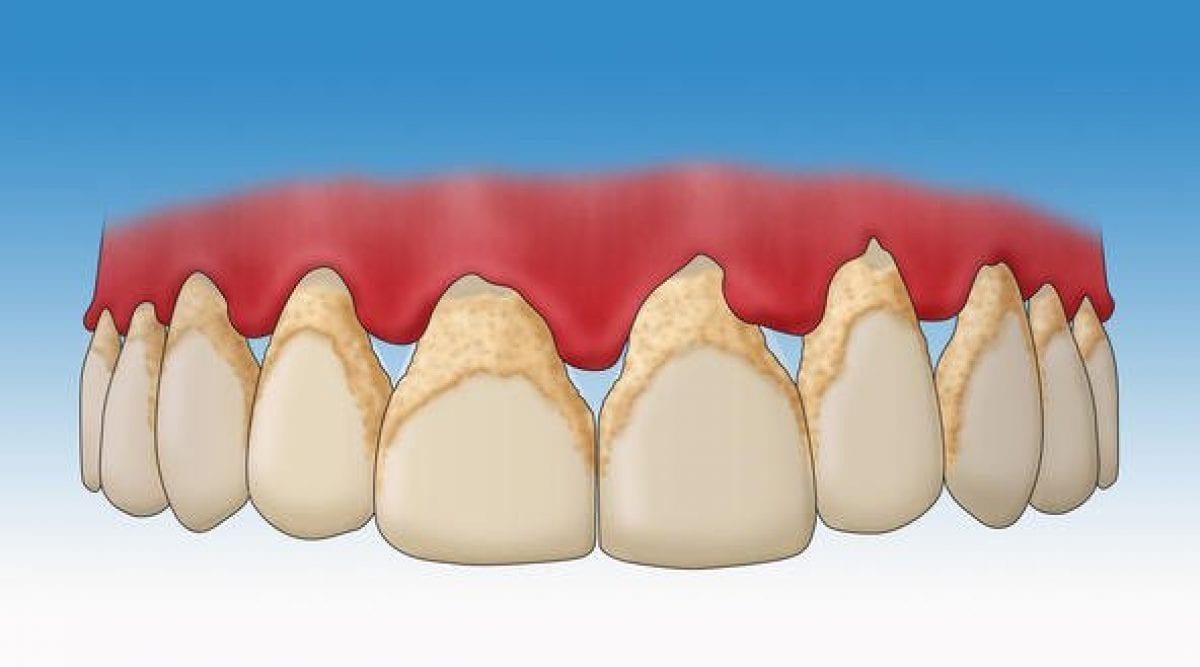 Recette : Enlevez le tartre de vos dents grâce à ce mélange naturel