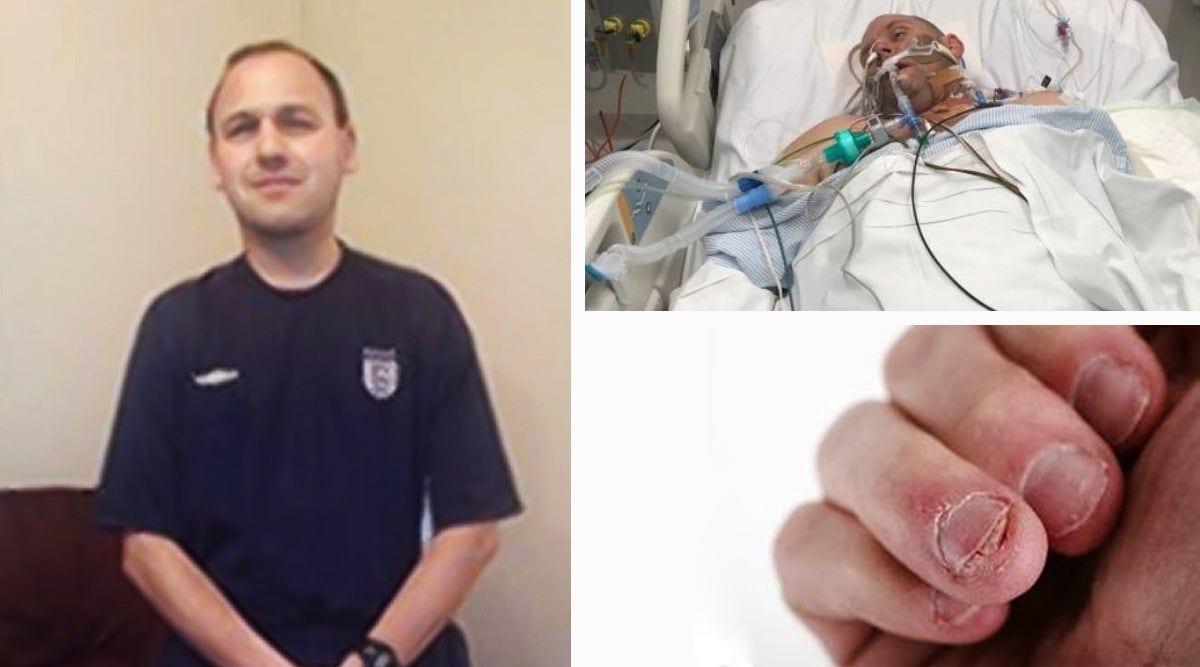 Un homme meurt après avoir trop rongé ses ongles