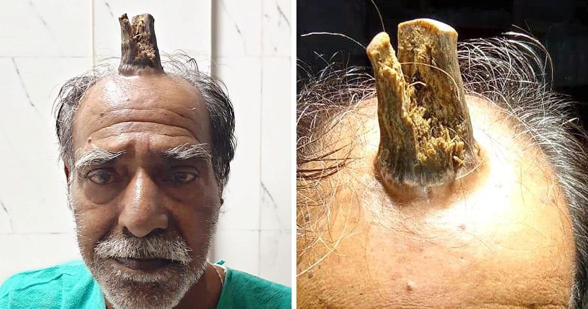 """Une """"corne de diable"""" de 10 cm pousse sur la tête d'un homme"""