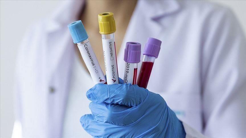 Le Cameroun enregistre son premier décès à cause du coronavirus