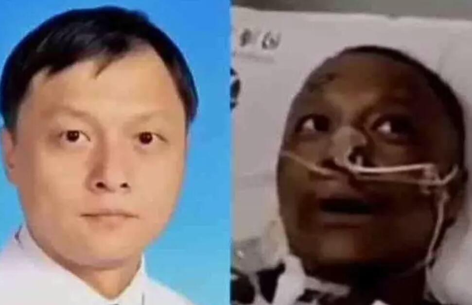 Covid-19 : après guérison, la peau de deux docteurs chinois devient noire