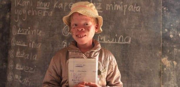 Sénégal : «98% des albinos vivent avec un cancer» (Président association)