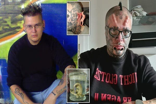 Allemagne : il paie près de 8 000 dollars pour se faire enlever les oreilles pour que sa tête ressemble à un crâne (photos)