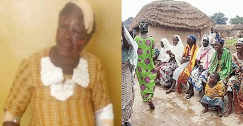 Ghana : une vieille femme accusée d'être une sorcière battue sévèrement par des villageois