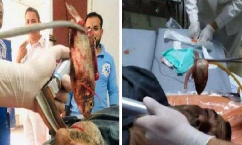Égypte: des médecins enlèvent un poisson vivant de la gorge d'un pêcheur-Vidéo