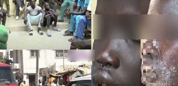 Etrange maladie chez des pêcheurs sénégalais : Ce que révèle le rapport d'investigation