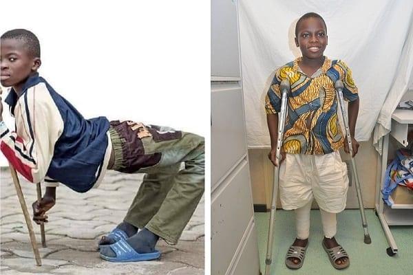 Togo : l'histoire miraculeuse d'Abel, le garçon handicapé qui marche de nouveau droit