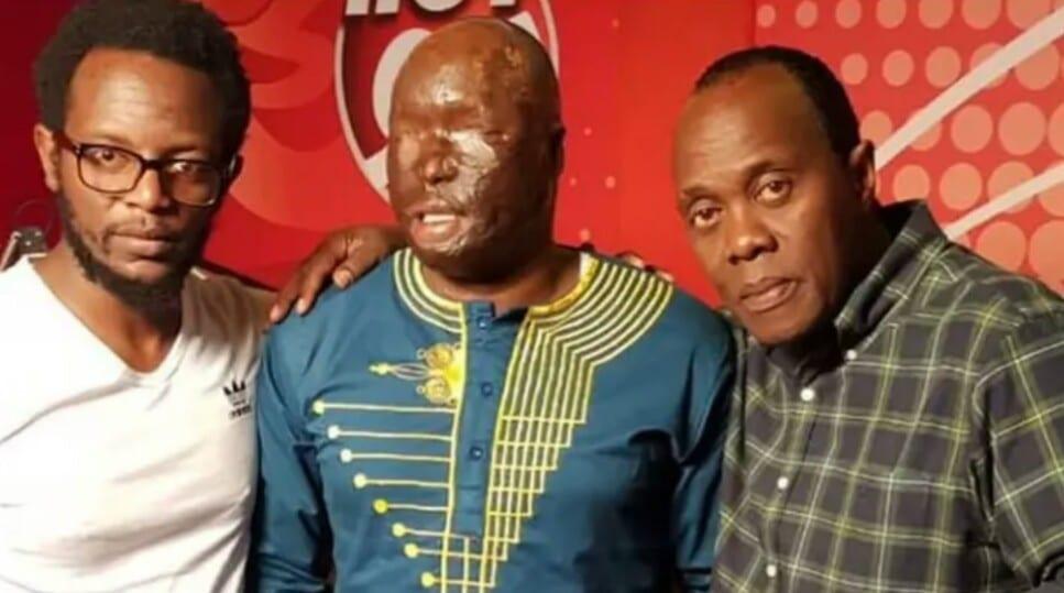 Kenya : une femme verse de l'acide au visage de son mari