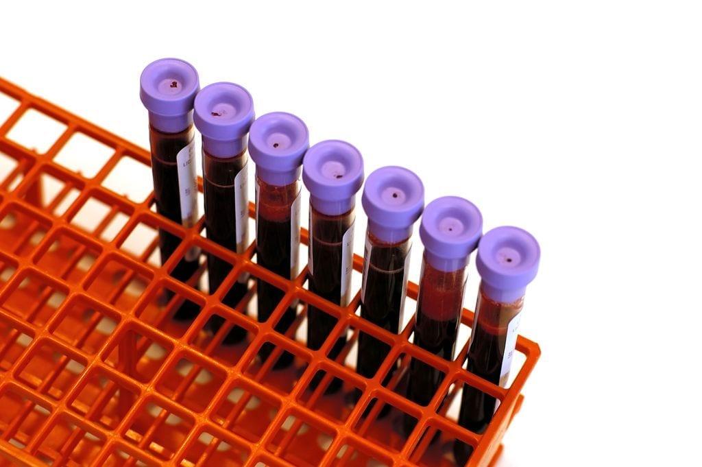 Covid-19 et groupe sanguin : les 0 moins souvent malades