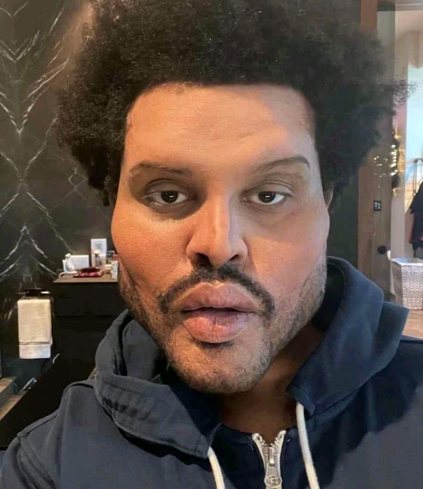 The Weeknd: La vérité derrière son nouveau visage immonde