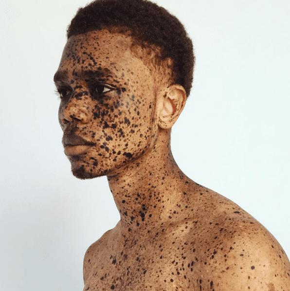 Yeezy:KanyeWest repère un jeuneHaïtienatteint devitiligo