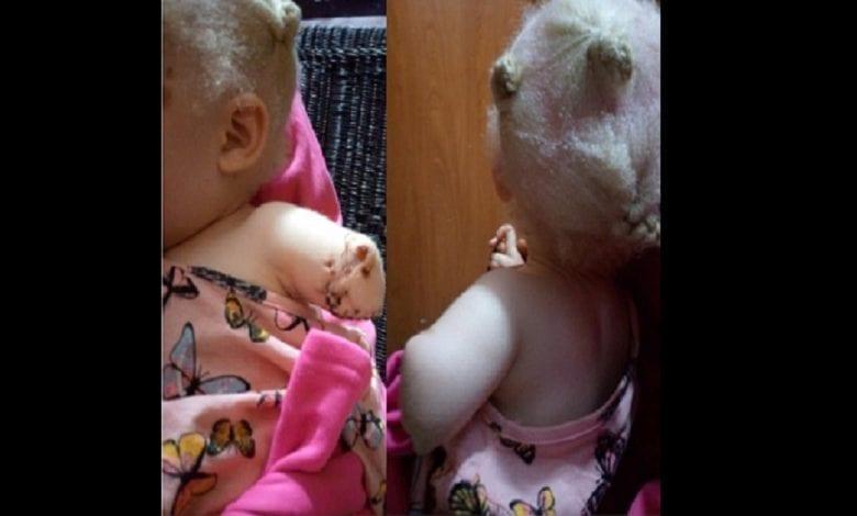 Zambie: la main d'une fillette albinos coupée pour un sacrifice rituel